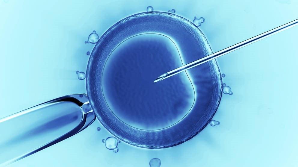 انتقال ژن به سلولهای یوکاریوتی - ترانسفکشن